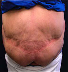 Chicago Abdominoplasty