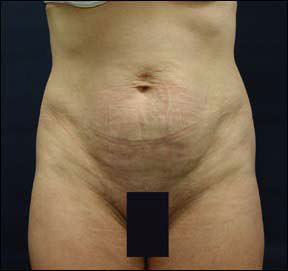 tummy tuck in chicago