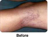 Vein Removal - Sample Photos