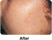 Laser Mole Removal - Sample Pictures