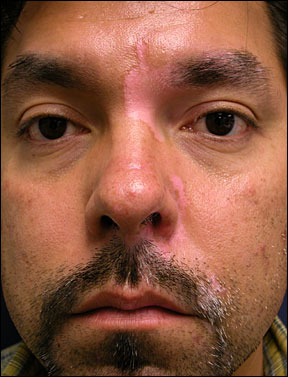 Vitiligo Symptoms, Causes, Treatments, White Spots on Skin ...