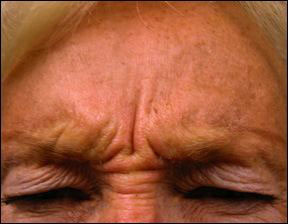 Crows Foot - Botox for the Crows Feet