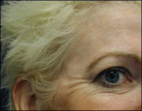 Anti Wrinkle - Men and Women