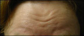 Botox Cosmetic - Forehead Lines