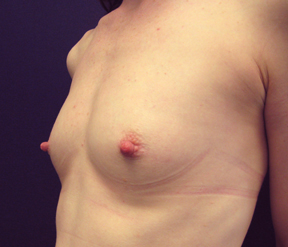 Chicago Breast Augmentation