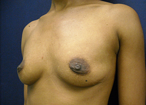 Chicago Breast Augmentation Surgery, Chicago Breast Enhancement & Chicago Breast Implants