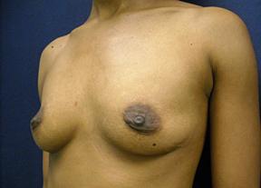Breast Augmentation Chicago - Silicone / Saline Breast