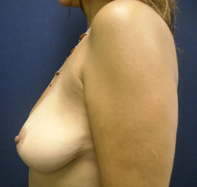 Chicago Breast Enhancement