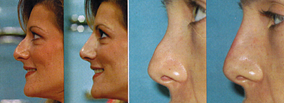 chicago non-surgical rhinoplasty alternative
