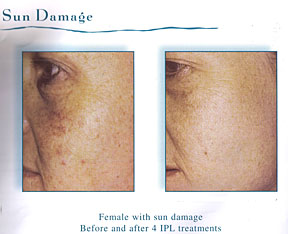 Chicago Laser Wrinkle Reduction
