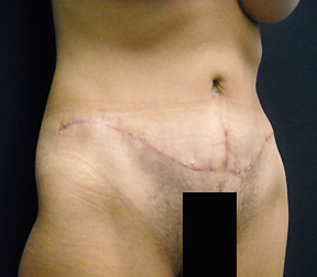 Chicago Tummy Tuck, Chicago Abdominoplasty