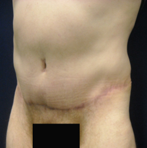 Chicago Abdominoplasty Tummy Tuck