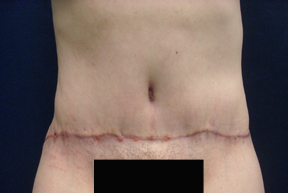 Chicago Tummy Tuck, Chicago Abdominoplasty, mini tummy tuck pictures, tummy tuck, panniculectomy, Chicago Tummy Tuck Surgery, Chicago Abdominoplasty Surgery, tummy tuck photo, tummy tuck picture, Panniculectomy Surgery, Chicago Panniculectomy Surgery, abdominoplasty photo, abdominoplasty picture, tummy tuck in chicago