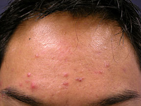 Acne Treatment - No Additional Treatment