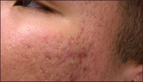 Chicago laser acne removal