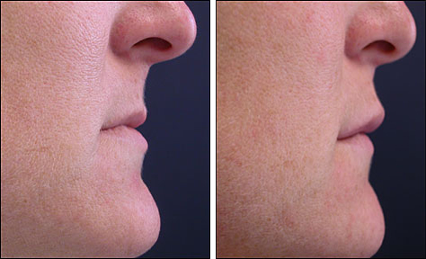 Collagen Injections Before and After Pictures   Prplastic