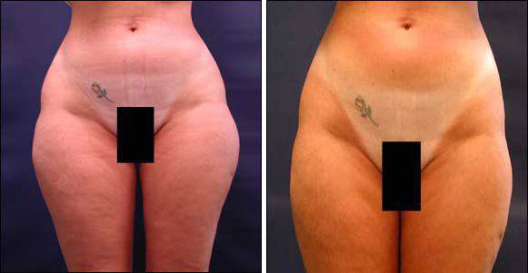 Plastic Surgery Liposuction Before and After Photos