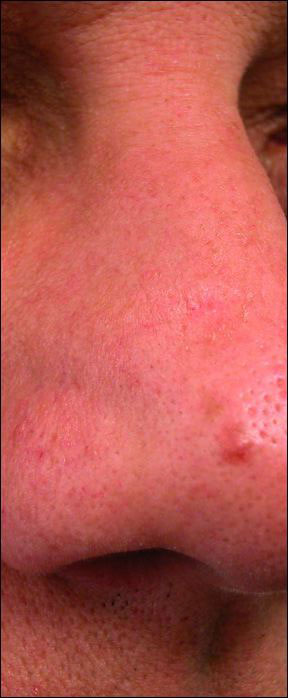 Actinic Keratosis - A Sample Picture