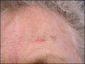 Actinic Keratosis - Early Signs of Cancer
