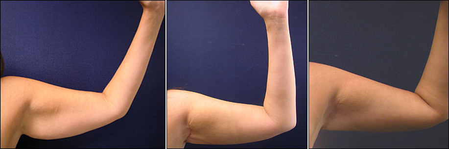 Arm Lift Scar 6 Months : Arm lift picture post surgical pictures