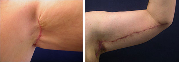 a4dcdd0b8e 54 year old male before and 6 weeks after full-scar arm lift. Notice the  red, active scar. The patient is encouraged to massage after 2 weeks and  the ...