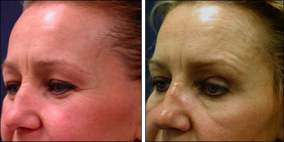 Chicago Botox | Cosmetic Injections Before and After | Botox Pictures