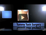 Chicago Tummy Tuck Abdominoplasty Surgery