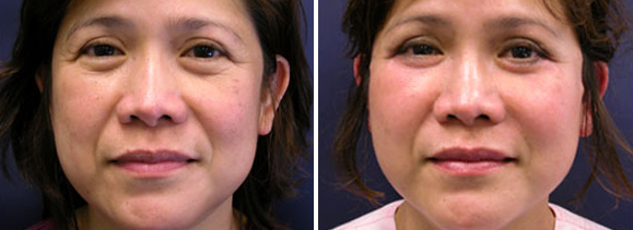 Facelift Surgery Before and After Photos   Facelift Pictures