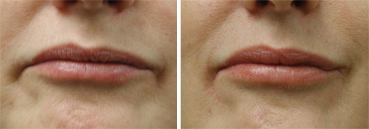 lip_enhancement