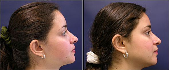 Non-Surgical Rhinoplasty Before After Photos | Nose Rhinoplasty