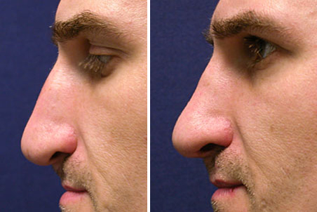 Non-Surgical Rhinoplasty Before After Photos   Nose Rhinoplasty