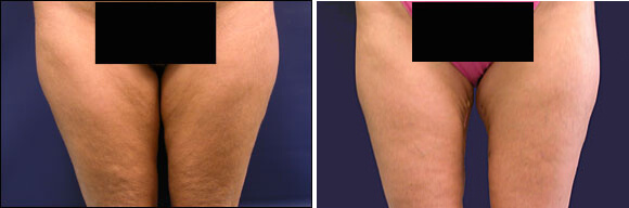 Thigh Lift Surgery Before and After Photos | Scar Pictures